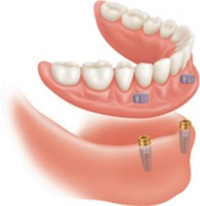 implantater undermund