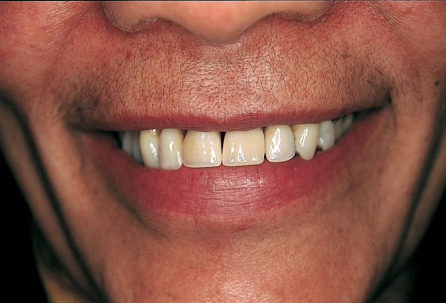 Den naturlige tandprotese