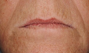 """Patienten ses med en ny tandprotese med hævet bidhøjde. Læberne har fået mere fylde, og det """"sure"""" udtryk er væk. Hovedpinen forsvandt hurtigt og efter nogle dage var ømheden i kæbeleddene heldigvis også væk."""